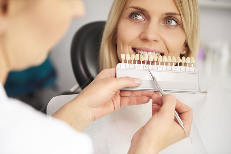 Dental Veneers Treatment Galway