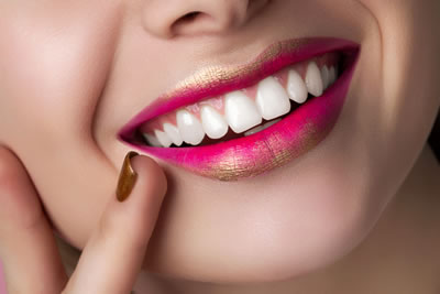Missing Teeth Treatments Galway