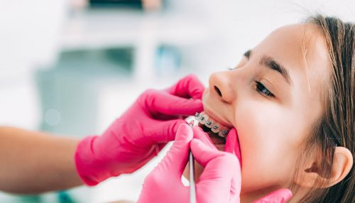 Guide to Getting Dental Braces - Galway